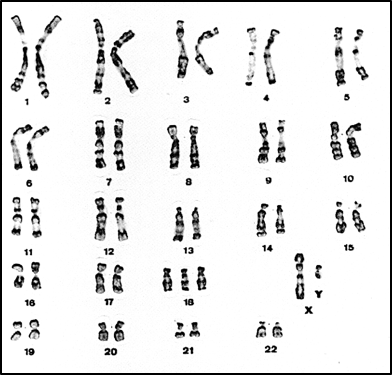 exemple-lecture-caryotype